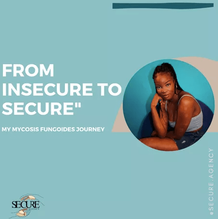 From Insecure to Secure: My Mycosis Fungoides journey